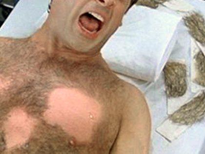 Serviço de depilação dolorosa – Esteticista